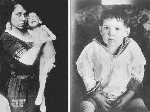 Это интересно! Первая инъекция инсулина спасла жизнь ребенка в этот день 97 лет назад